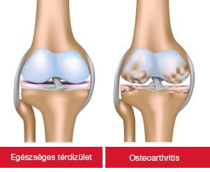 Az artrózis alattomos betegség – lassan alakul ki