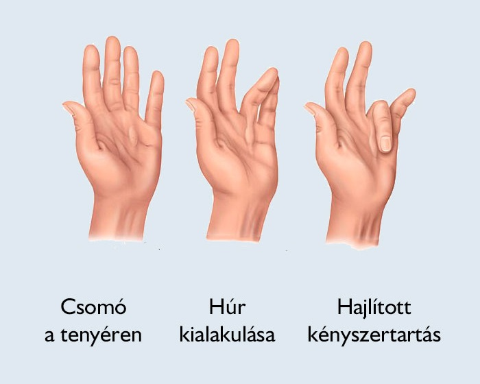 mit kell venni az ujjak ízületeinek fájdalma érdekében)