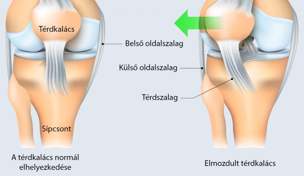 fájdalom a térdben és a hátban)
