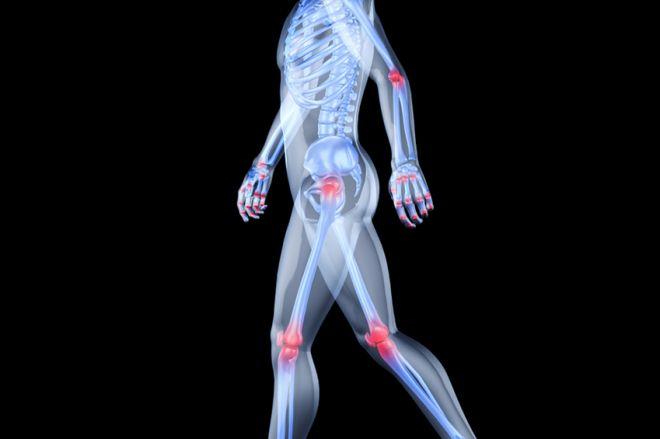 A legjobb térelválasztók áttekintése a térdízület arthrosisához