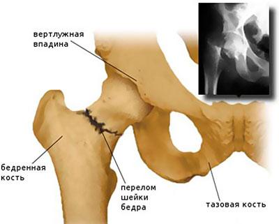 deformáló csípőízület csípő dysplasia kezelése