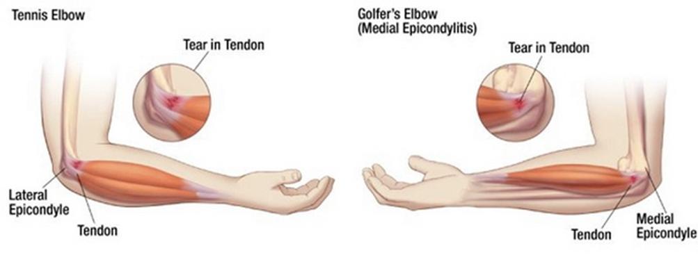a csípőízület artrózisának masszázskezelése a csípő fáj, amikor felkelsz