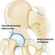 a csípőízület hemarthrosisa)