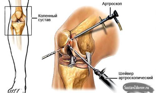 térdízület deformáló artrózis
