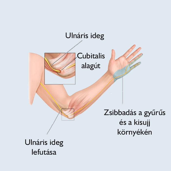 a kar radiális ízületi gyulladása