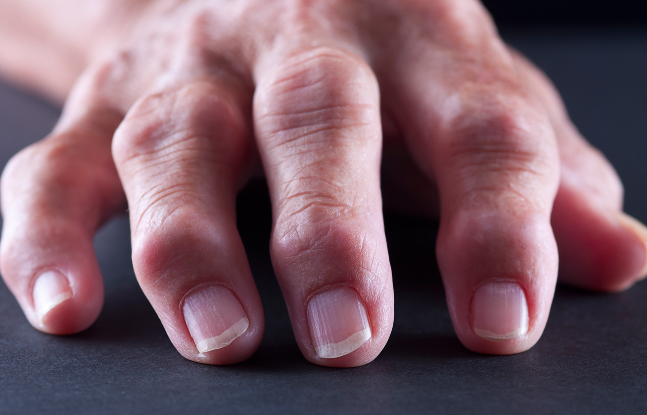 amikor a rheumatoid arthritis ízületi gyulladása eltűnik)
