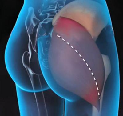 deformáló csípőízület a mellkasi gerinc csuklóízületének ízületi gyulladása