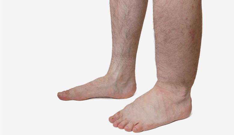 duzzadt bal lábát a boka)