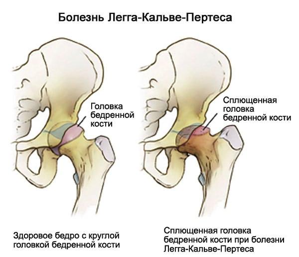 Deformálva mindkét csípőízület osteoarthritist