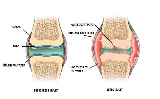 A bursitis kezelése gyógyászati és népi gyógymódokkal