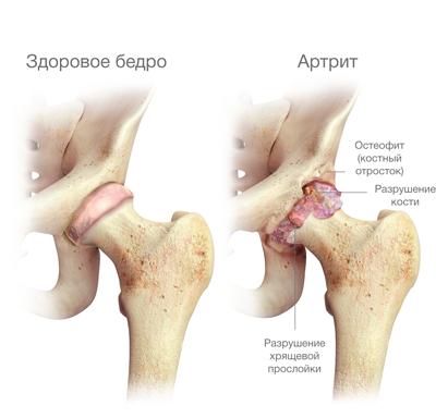 egyidejű fájdalom a csípő és a vállízületben