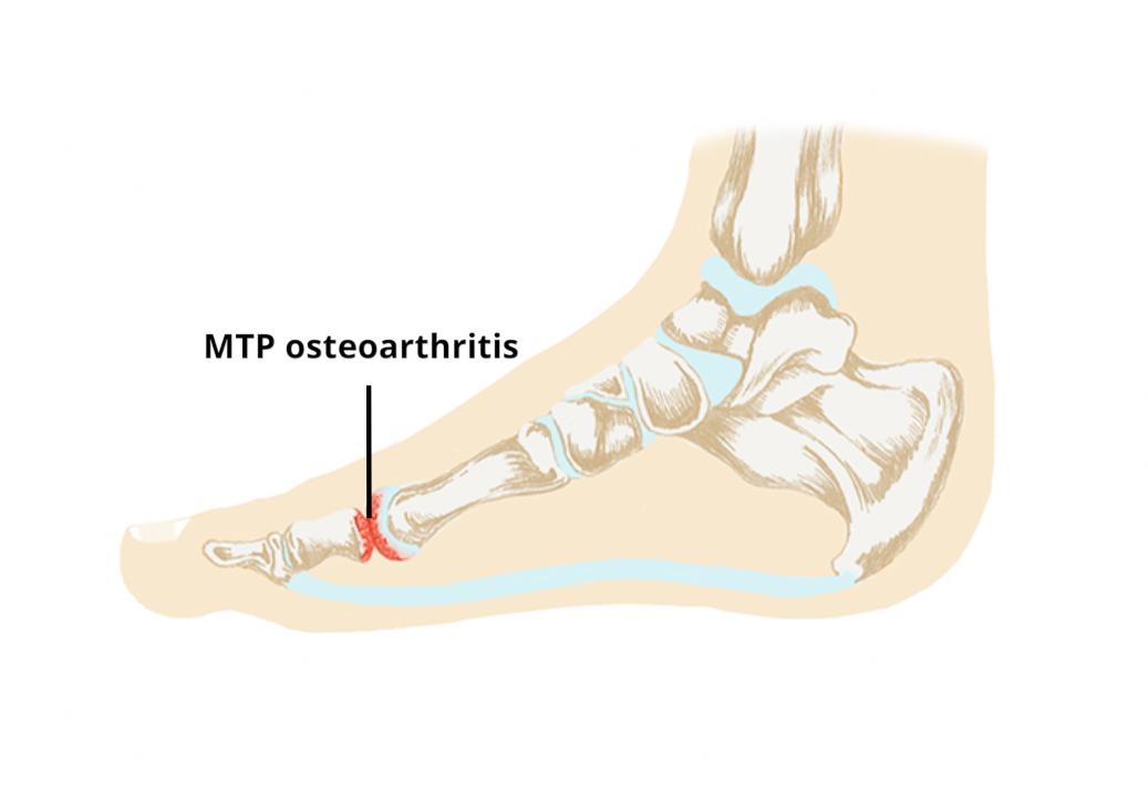 Metatarsopharyngealis arthrosis. Uploaded by