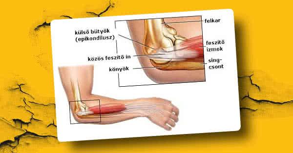 ízületi fájdalom fizikai erőfeszítés során)