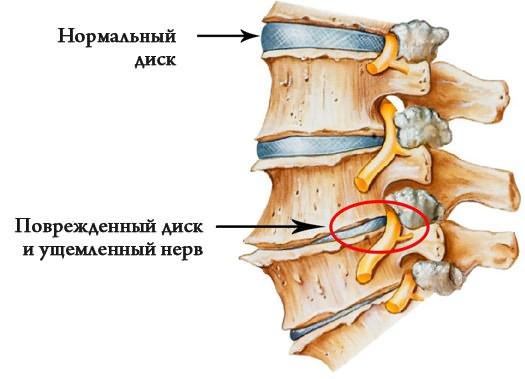 fájdalom a bal csípőízületben és az ágyékban