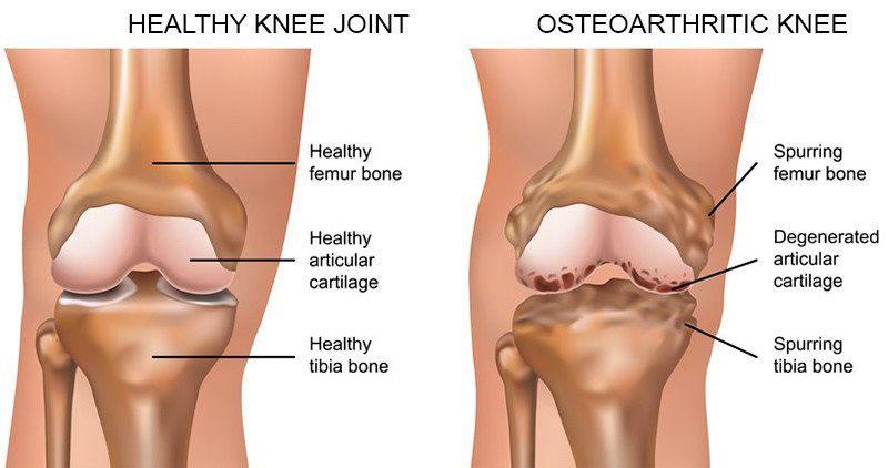 fájdalom a csípőben amikor a bal oldalon jár hogyan lehet enni a térdízület fájdalmával