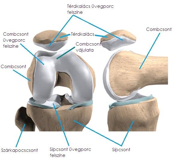 mit kell viselni a térd artrózisával)