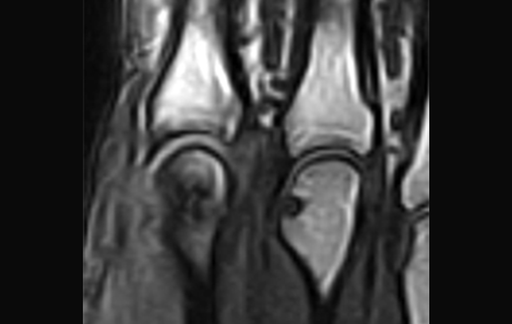 Aiming for Remission in Rheumatoid Arthritis (RA) - the ARCTIC Trial